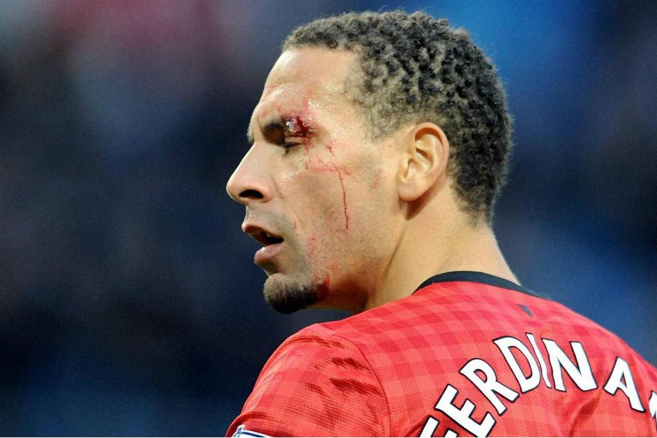 Ex England Star Ferdinand Turn Boxing Report